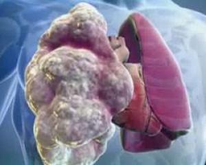 Предполагаемый COVID-19 оказался другим редким опасным заболеванием